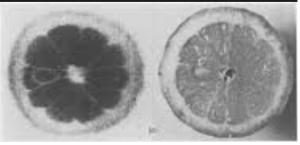 MRI-fruit